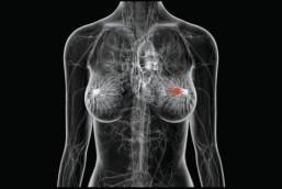 Entenda a importância da Mamografia e não deixe para depois